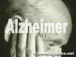 alzheimermod