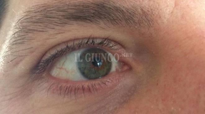 occhio oculista